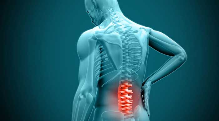 Symptoms of Herniated Discs