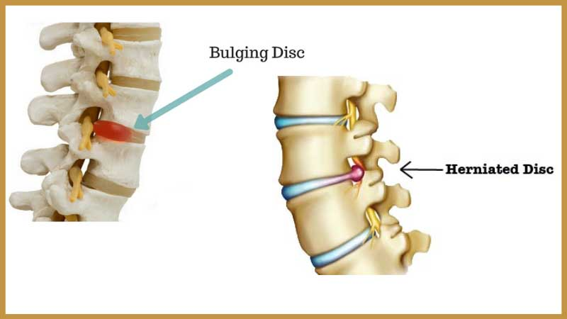 Bulging Disc vs. Herniated Disc