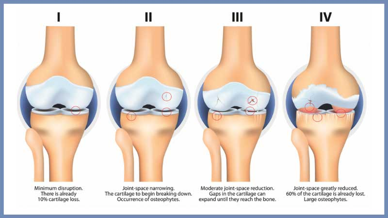 What Are the Stages of Osteoarthritis of the Hip