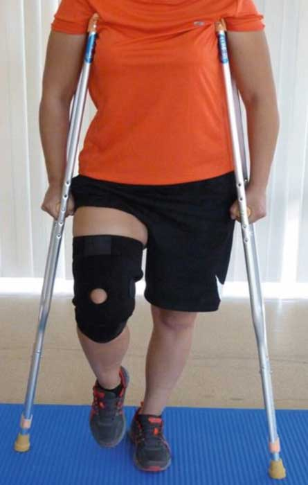How to wean off crutches after knee surgery