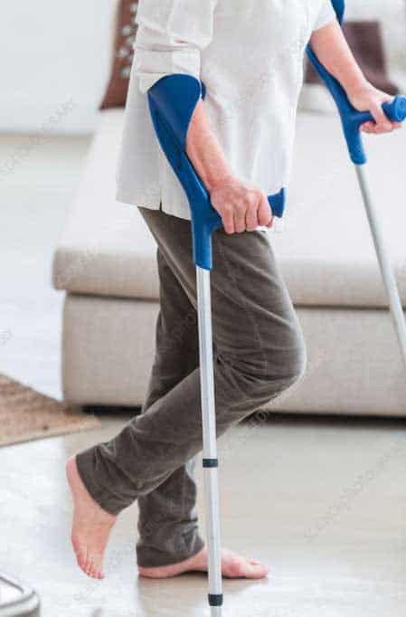 stop using crutches after knee surgery